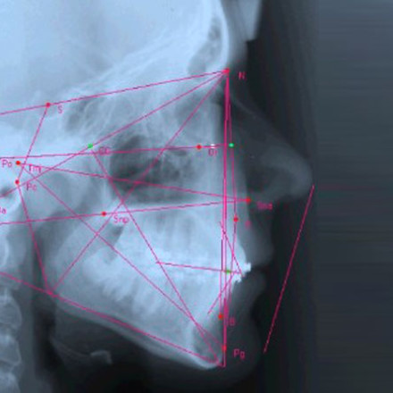 Teleradiografia latero-laterale del cranio