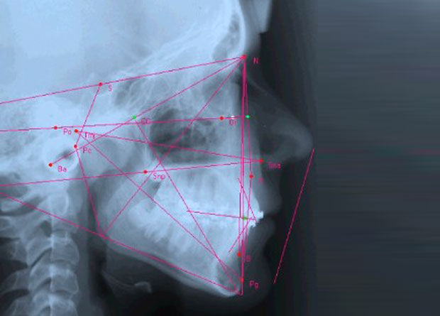 Teleradiografia-latero-laterale-del-cranio