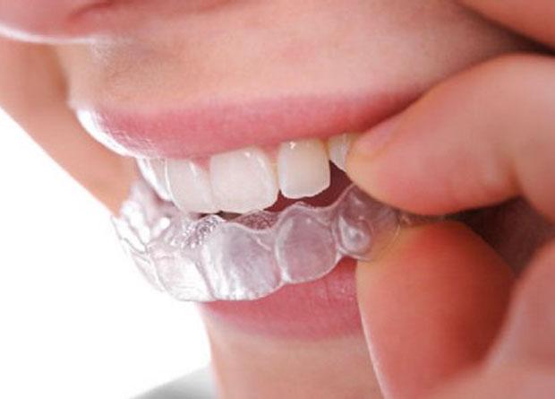 ortodonzia-mobile
