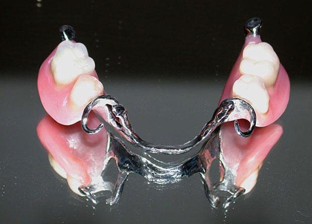 protesi-su-impianti